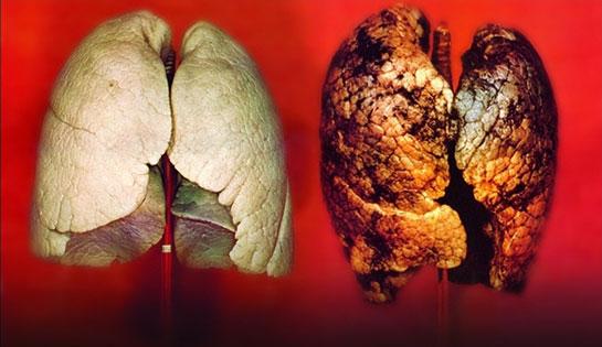 akciğer temizliği ile ilgili görsel sonucu